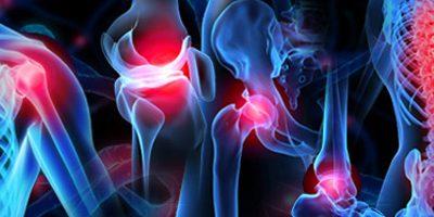 Ortopedia, fretta e 10 domande